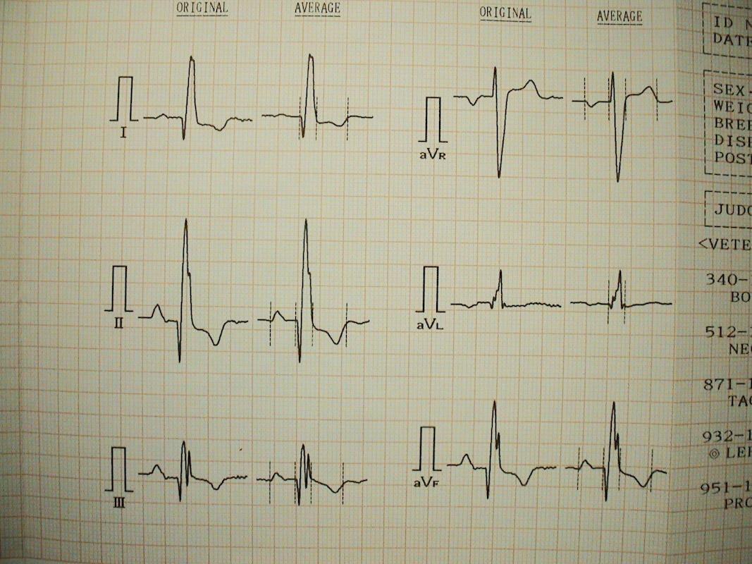 EKG - izpis na papirju