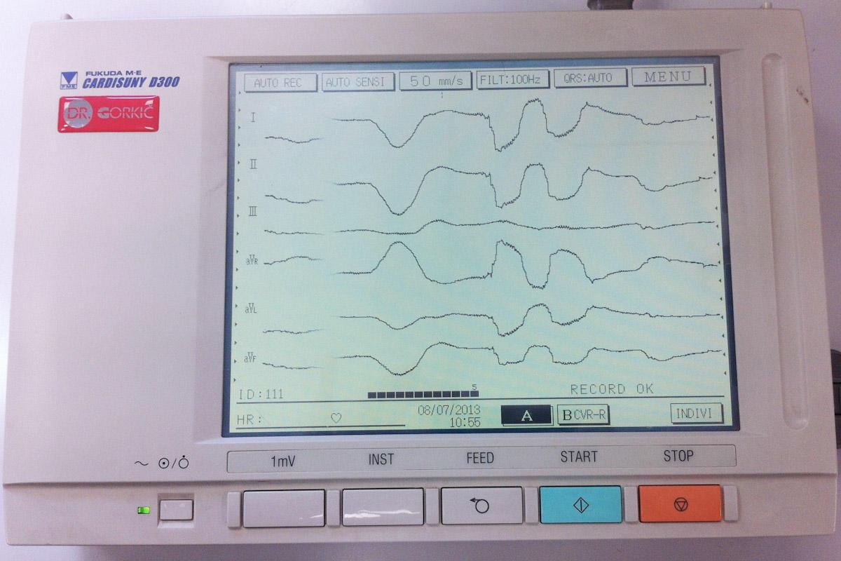 Digitalni elektrokardiograf