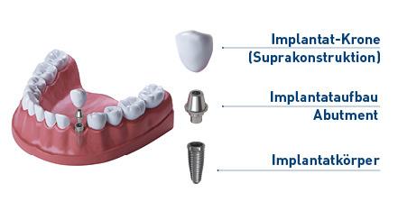 www.implantat-berater.de