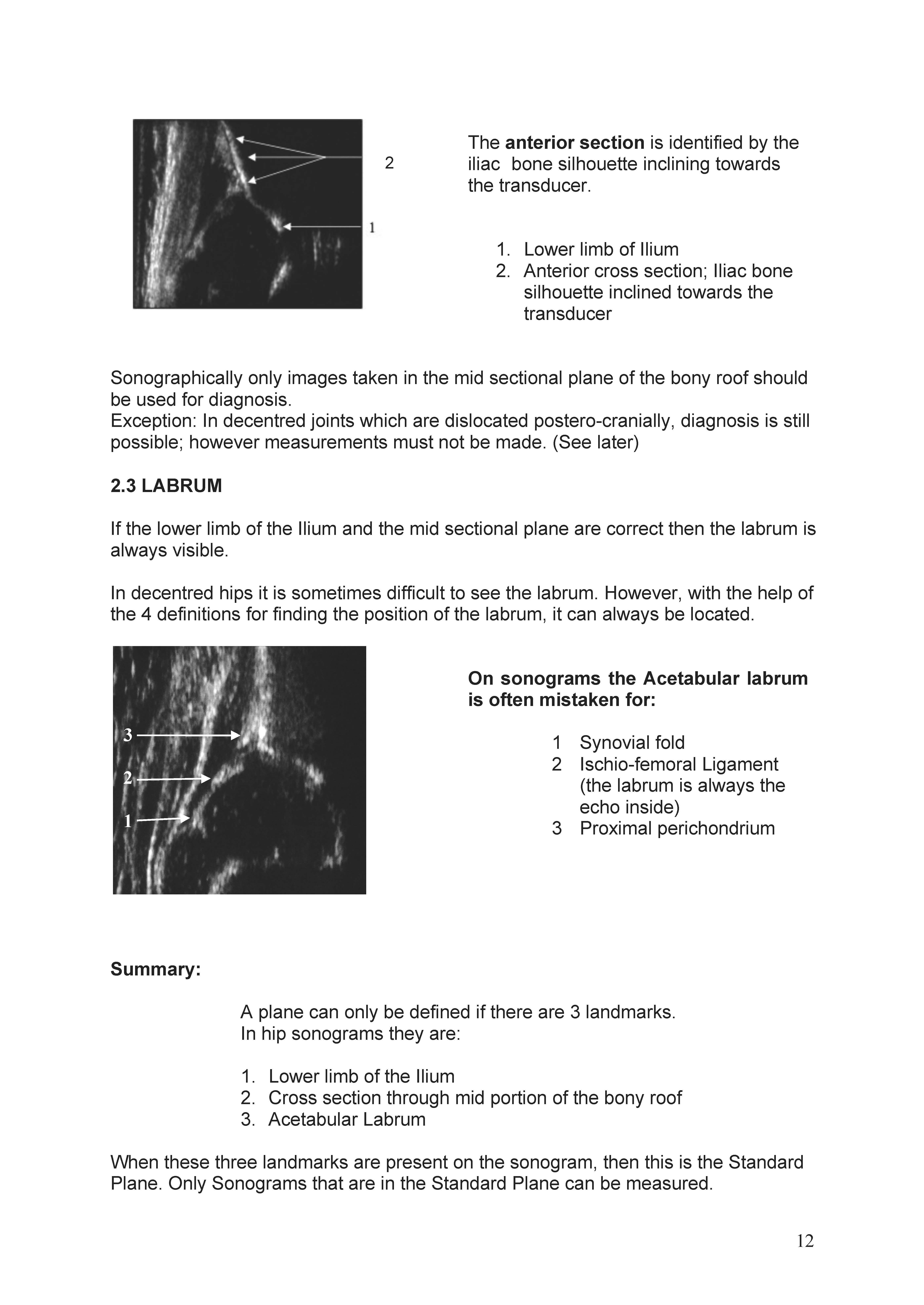 https://0501.nccdn.net/4_2/000/000/076/de9/ManualHip-Sonography--Ma_rz-2017-1_Seite_12-4597x6490.jpg