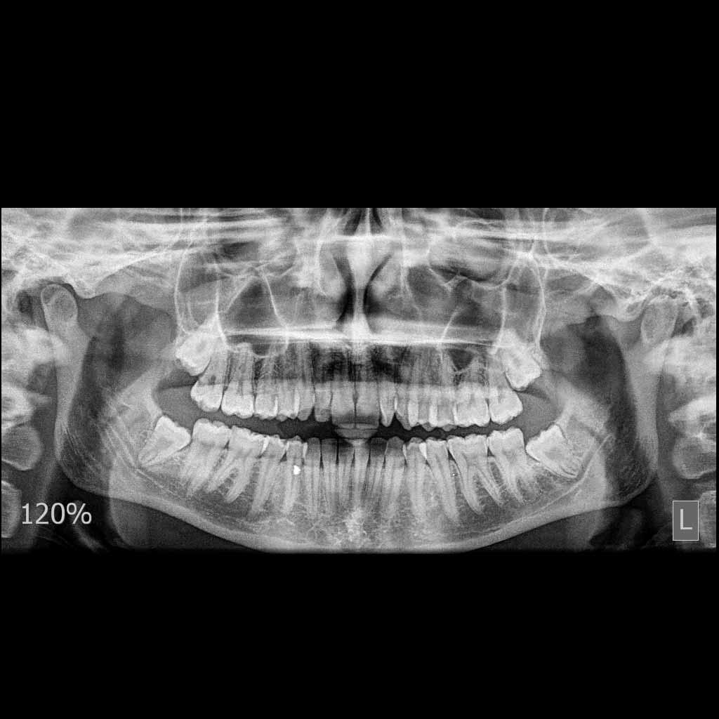 πανοραμικη ακτινογραφια (οδοντιατρικες)