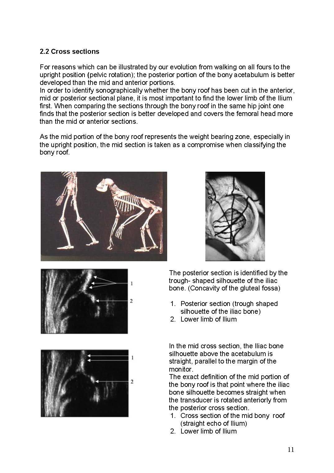 https://0501.nccdn.net/4_2/000/000/081/58d/ManualHip-Sonography--Ma_rz-2017-1_Seite_11-1075x1521.jpg